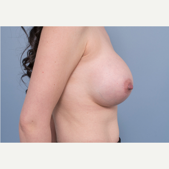 25-34 year old woman treated with Breast Removal and Replacement after 3540306