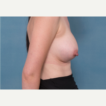 25-34 year old woman treated with Breast Removal and Replacement before 3540306