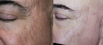 65-74 year old man treated with Acne Scars Treatment before 3278125