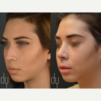Rhinoplasty with rib cartilage before 3116169