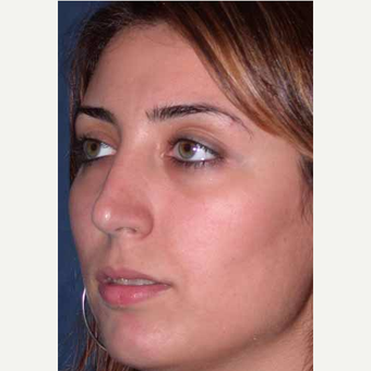 35-44 year old woman treated with Rhinoplasty after 3521231