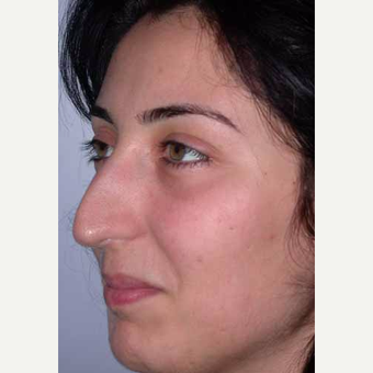 35-44 year old woman treated with Rhinoplasty before 3521231