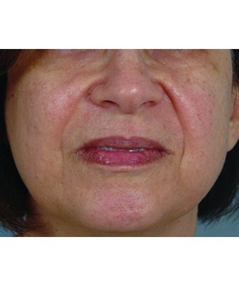 Juvederm  before 1268436