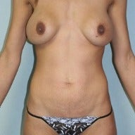 25-34 year old woman treated with Mommy Makeover before 1564361