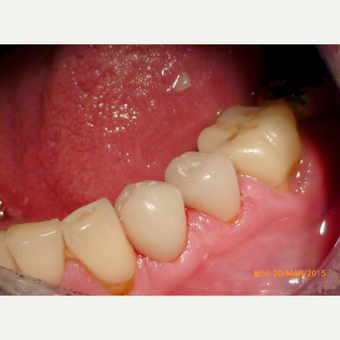 Dental Crowns - Cerac  after 2654487