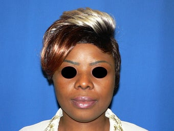 18-24 year old woman treated with African American Rhinoplasty using DCF graft  after 1615487