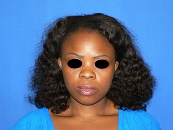 18-24 year old woman treated with African American Rhinoplasty using DCF graft  before 1615487