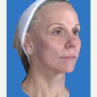 59 year old woman treated with Laser Resurfacing after 3839801