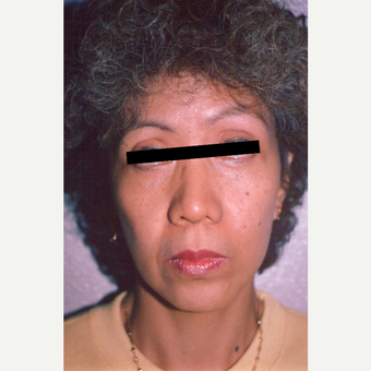45-54 year old woman treated with Facelift after 3539103