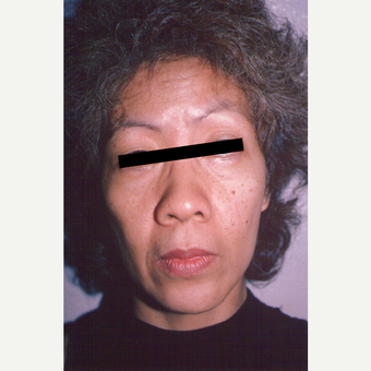 45-54 year old woman treated with Facelift before 3539103