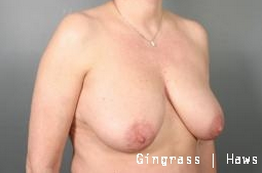 Breast Lift before 1381294