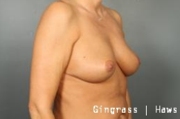 Breast Lift after 1381294