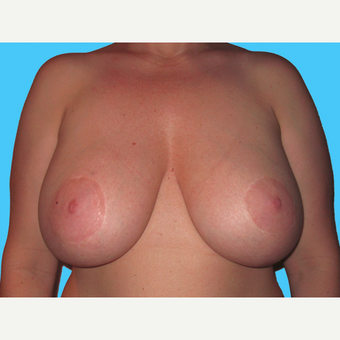Breast Implant Removal before 3809836