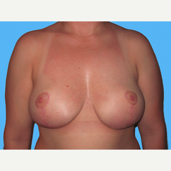 Breast Implant Removal after 3809836