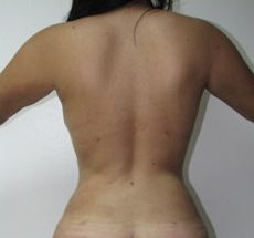 25-34 year old woman treated with Liposuction after 1688976