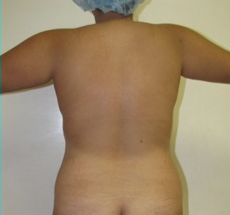 25-34 year old woman treated with Liposuction before 1688976