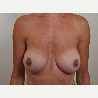 45-54 year old woman treated with Breast Implant Revision due to capsular contracture. after 3488218