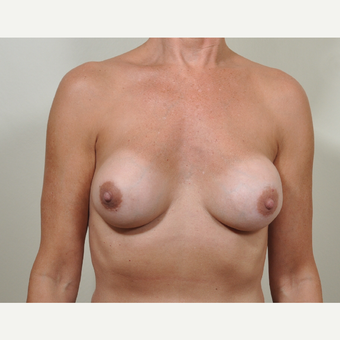 45-54 year old woman treated with Breast Implant Revision due to capsular contracture. before 3488218