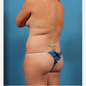 25-34 year old woman treated with Liposuction before 3205275