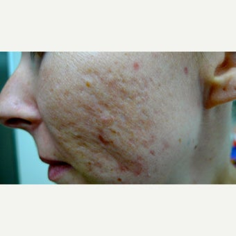 Fractional and fully ablative lasers for acne scars