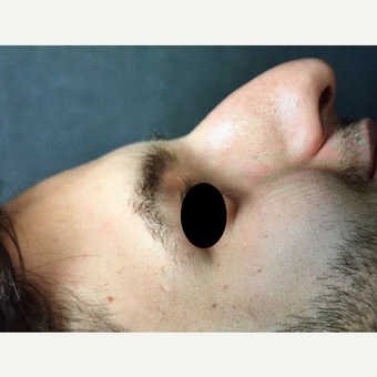 18-24 year old man treated with Rhinoplasty before 3211739
