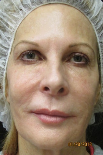 Ultherapy Full Face after 891079
