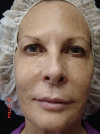 Ultherapy Full Face before 891079