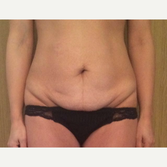 35-44 year old woman treated with Tummy Tuck before 3530899
