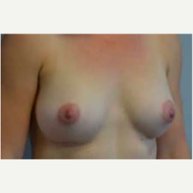 Breast Augmentation after 3058276