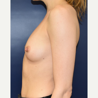 25-34 year old woman treated with Sientra Breast Implants before 3711204