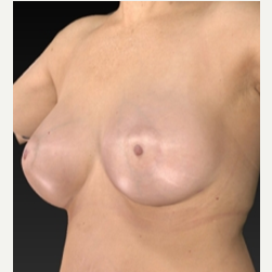 55-64 year old woman treated with Breast Augmentation 1939753