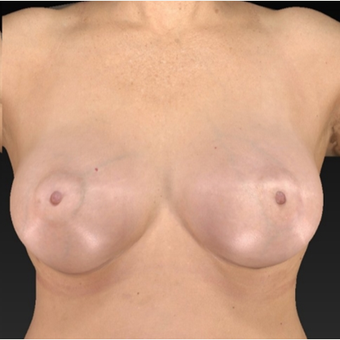 55-64 year old woman treated with Breast Augmentation after 1939753