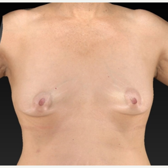 55-64 year old woman treated with Breast Augmentation before 1939753