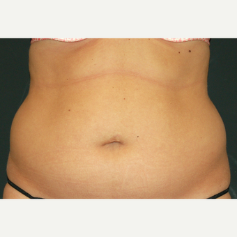 35-44 year old woman treated with Liposculpture before 3650050