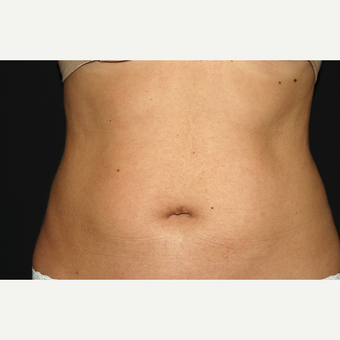 35-44 year old woman treated with Liposculpture after 3650050