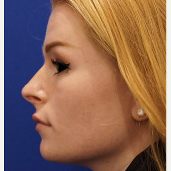18-24 year old woman treated with Non Surgical Nose Job after 3711456