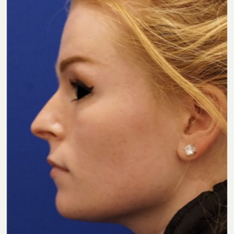 18-24 year old woman treated with Non Surgical Nose Job before 3711456