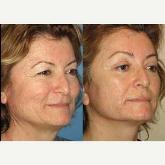 65-74 year old woman treated with Facelift after 3602557