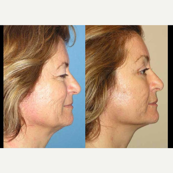 65-74 year old woman treated with Facelift before 3602557