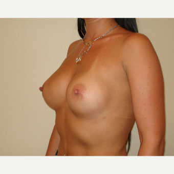 25-34 year old woman treated with Breast Augmentation after 3841762