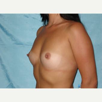 25-34 year old woman treated with Breast Augmentation before 3841762
