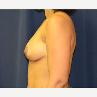 35-44 year old woman treated with Breast Lift after 3804471