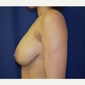 35-44 year old woman treated with Breast Lift before 3804471