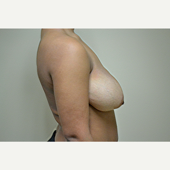 18-24 year old woman treated with Breast Reduction before 3741446