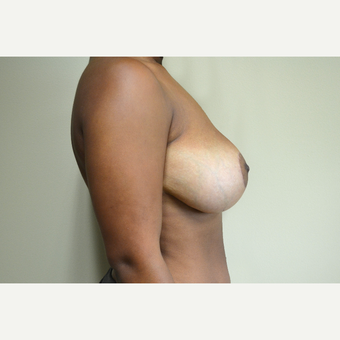 18-24 year old woman treated with Breast Reduction after 3741446