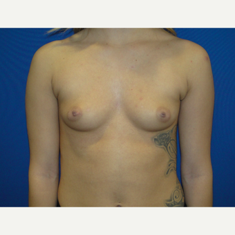 Breast Augmentation with 425 cc Silicone Implants before 3495806