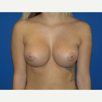 Breast Augmentation with 425 cc Silicone Implants after 3495806