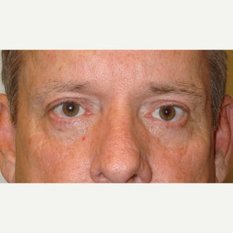 50year old man treated with Ptosis Surgery after 1634869