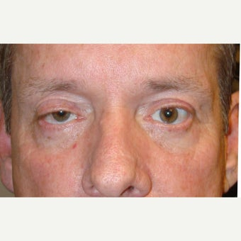 50year old man treated with Ptosis Surgery before 1634869