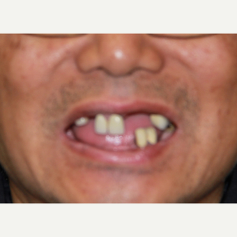 All-on-4 Dental Implants before 2894736